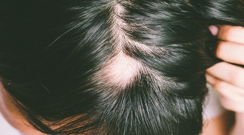 Alopecia Areata: Causes, Symptoms, Management and Clinical Features