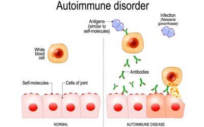 Ayurveda for autoimmune Disease