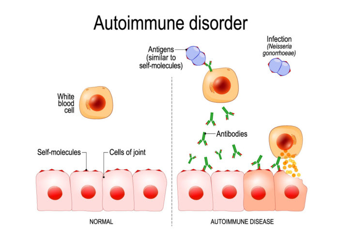 ayurveda for autoimmune disorder